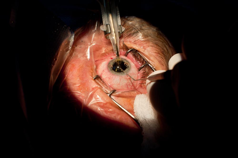 Замена хрусталика глаза наискусственный— пока единственный способ борьбы со слепотой, развившейся из-за катаракты.