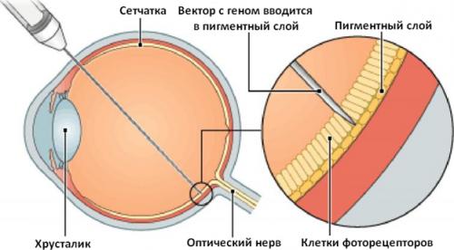 Генная терапия пигментного ретинита