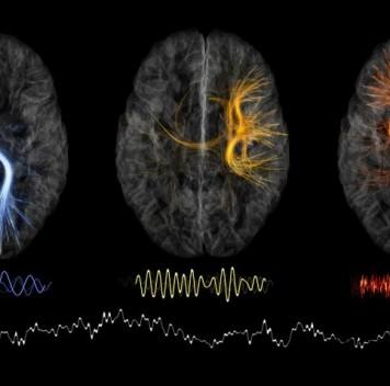 Неврологический институт переходит намодель open science