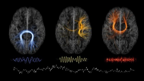Монреальский неврологический институт Макгилла переходит намодель open science