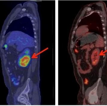 Генномодифицированные Т-лимфоциты побеждают рак крови