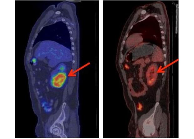Лимфома исчезает под воздействием терапии модифицированными T-лимфоцитами.