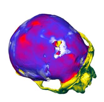 Распределение толщины костей черепа особи LB1 — голотипа Homo floresiensis