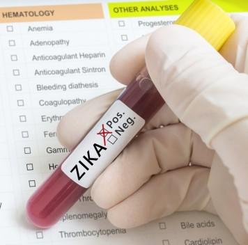 Вирус Зика может вызывать тяжёлое неврологическое заболевание
