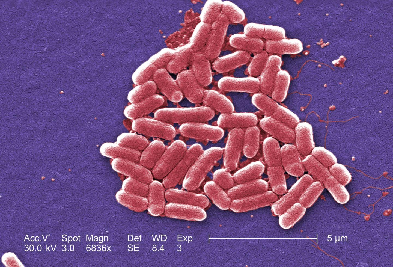 Бактерии <i>E. coli</i> под микроскопом.