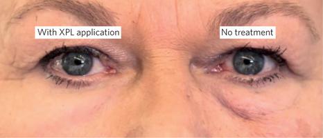 Слева— кожа покрыта новым косметическим полимером. Справа— без обработки
