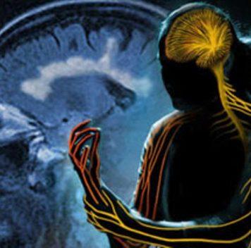 Найдена мутация, связанная сразвитием рассеянного склероза