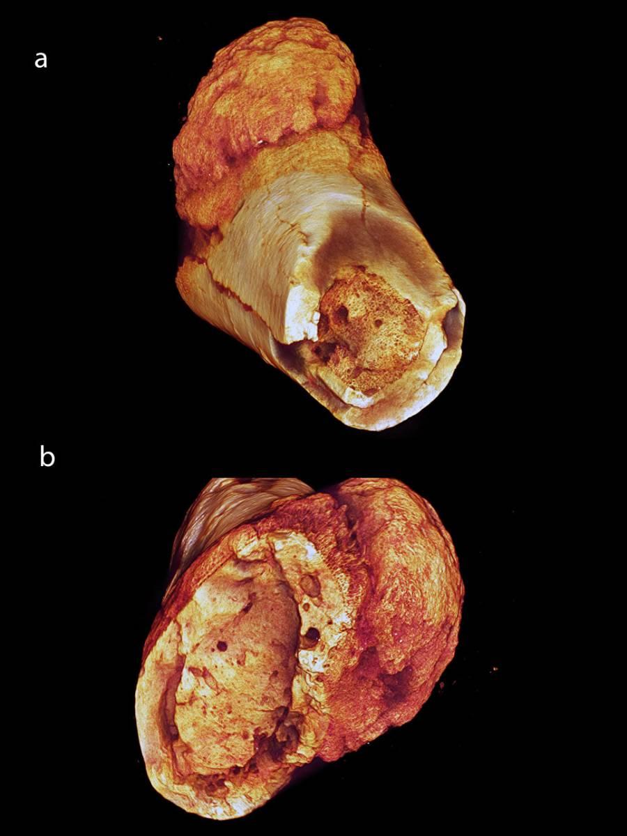 Рак кости упредставителя гоминид, жившего 1,7 миллиона лет назад.
