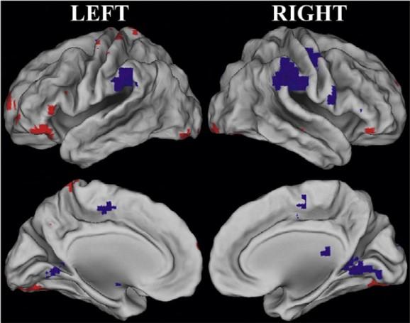 Снимок функциональной МРТ, отражающий возрастные изменения вработе мозга.