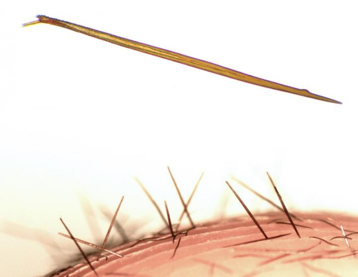 Жгучие волоски паука Kankuamo marquezi под микроскопом.