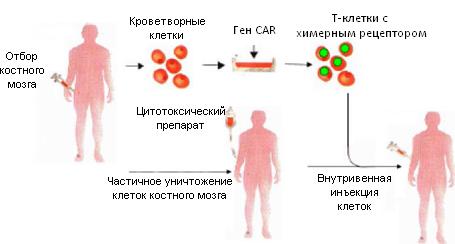 Рисунок 6. Схема лечения пациента модифицированными Т-лимфоцитами, несущими химерный антигенный рецептор (CAR)