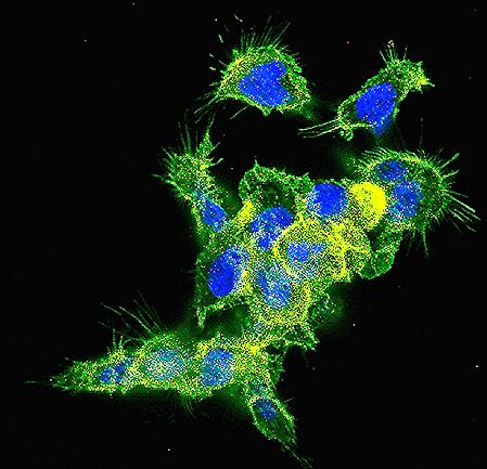 Золотые наночастицы доставляют siRNA кновообразованию втолстом кишечнике. Фото: Artzi Lab.
