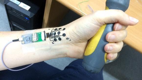Новый накожный электрод измеряет электрическую активность мышц, пока пациент занимается своими делами.
