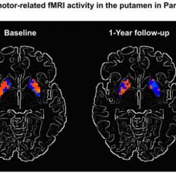 Функциональная МРТ поможет вборьбе сболезнью Паркинсона