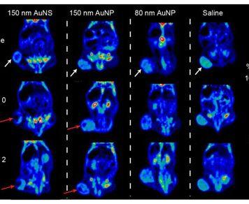 Лазер инаночастицы против раковых клеток