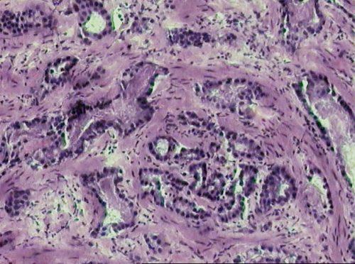 Микрофотография инвазивной аденокарциномы простаты