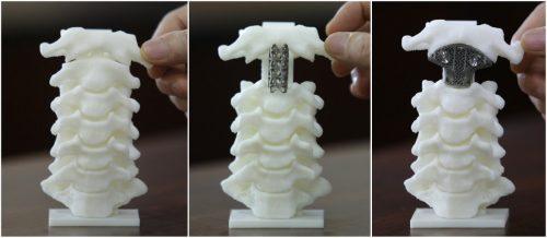 Распечатанные на3D-принтере позвонки