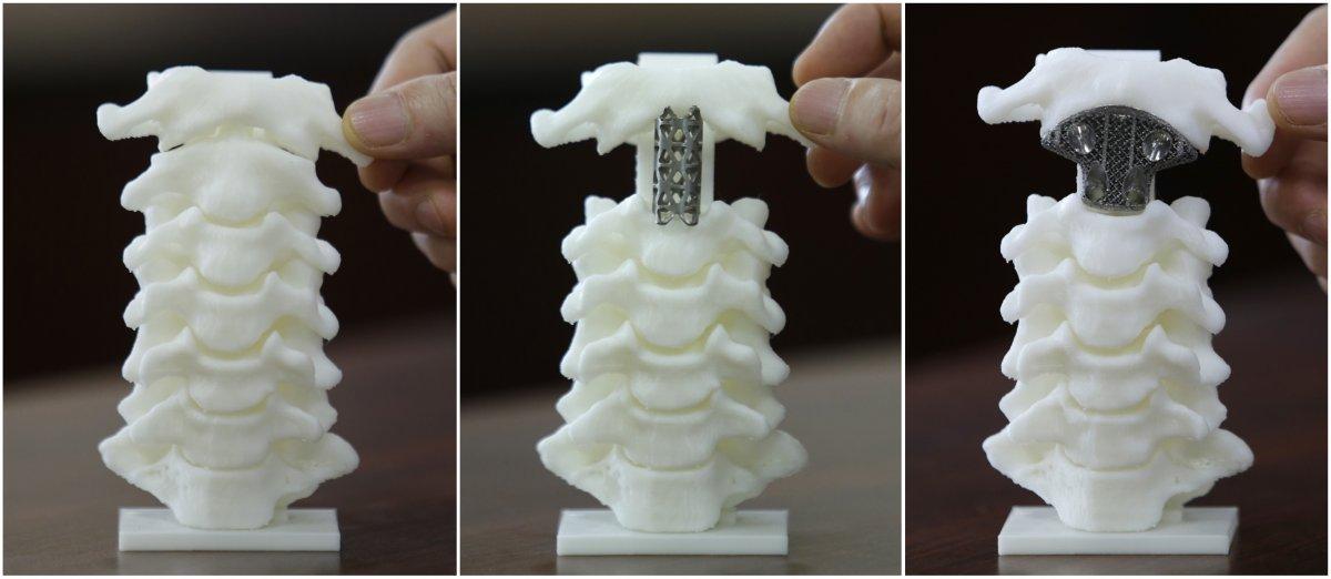 Распечатанные на3D-принтере позвонки.