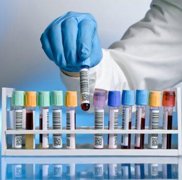 Значительная часть генетических исследований может содержать неверно маркированные образцы