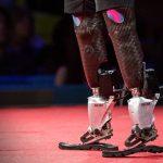 Люди с бионическими конечностями сегодня пока ещё выглядят немного фантастично