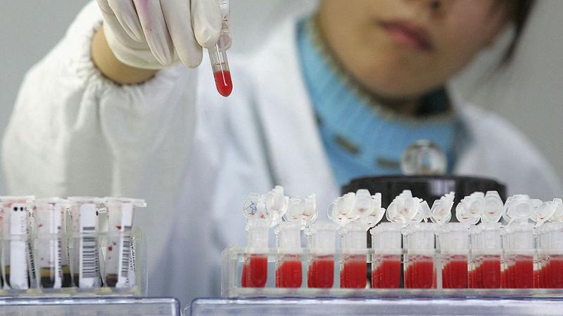 Вобразцах крови британца вирус ВИЧ необнаружен.