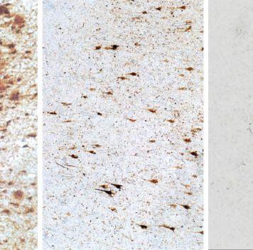 Белки, связанные сболезнью Альцгеймера, невсегда нарушают память