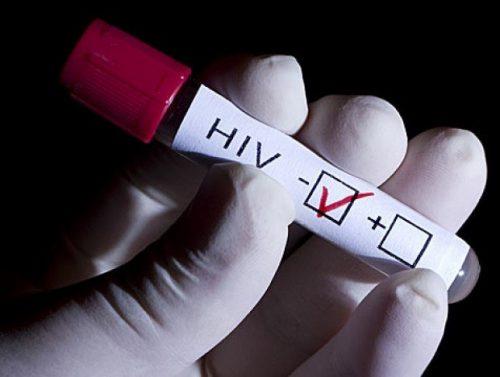 Долутегравир препятствует распространению ВИЧ половым путём.