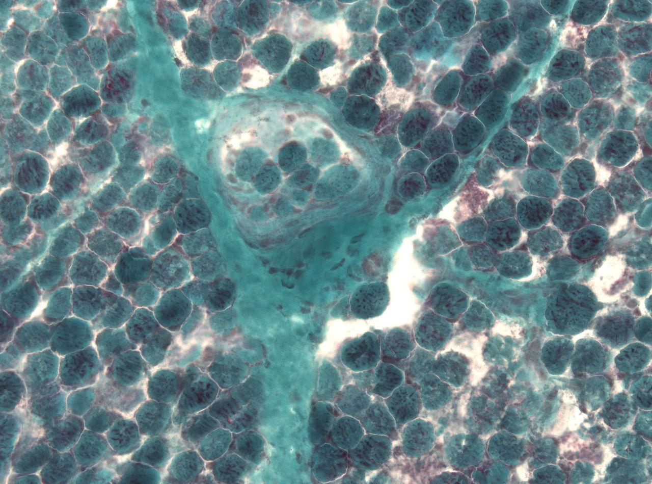 Обнаружение многочисленных рваных красных волокон при биопсии мышц— один из симптомов синдрома Лея.
