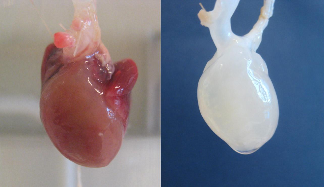 Децеллюляризация сердца