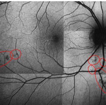 Простое обследование глаз может предсказать болезнь Альцгеймера