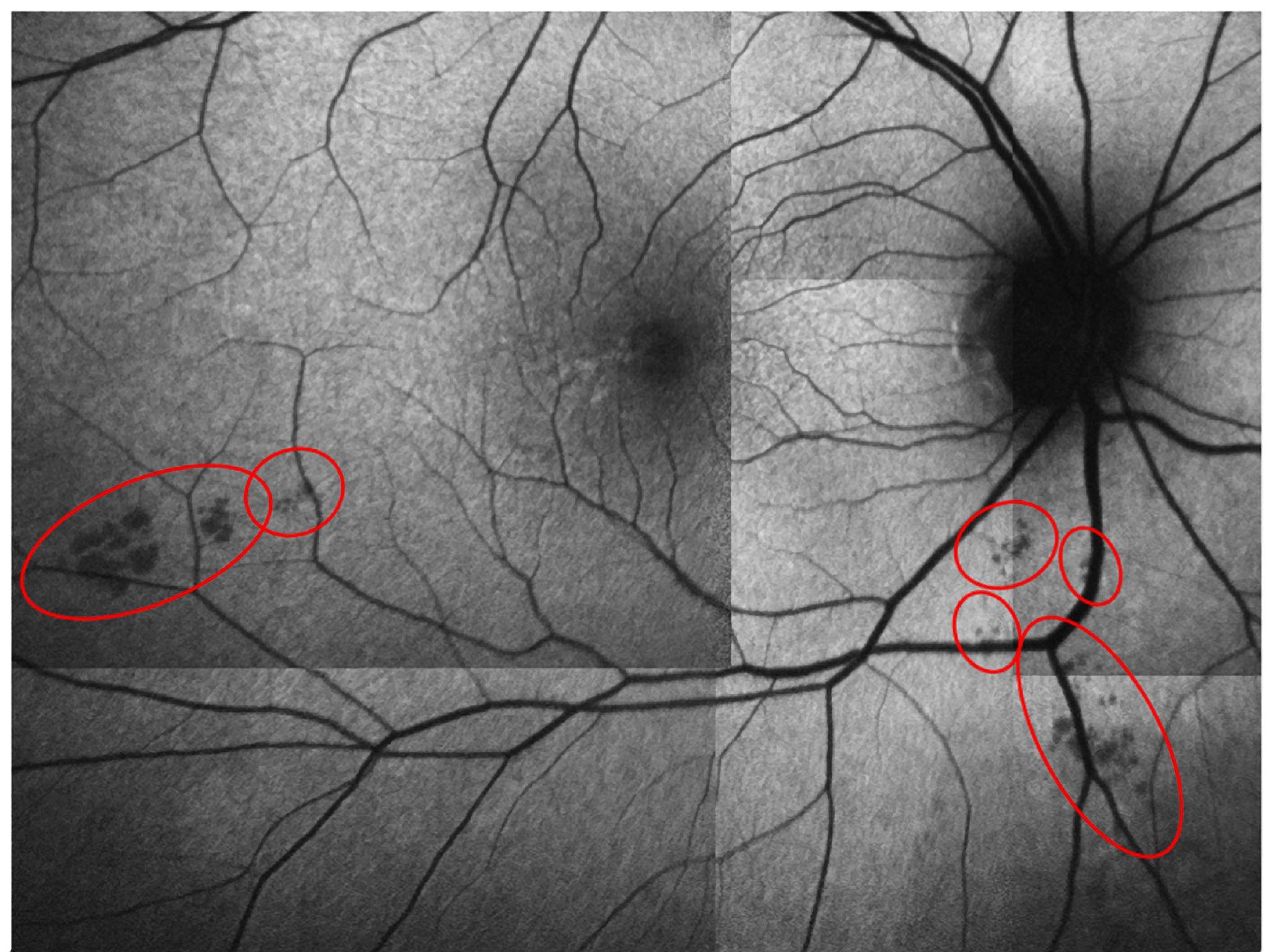 Крохотные включения всетчатке могут предсказать развитие болезни Альцгеймера задолго до появления симптомов.