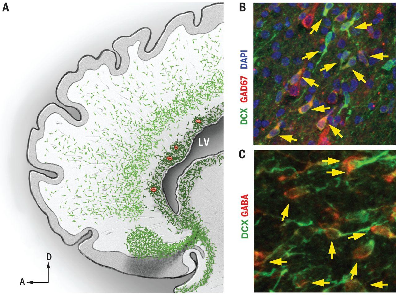 """Зелёные """"кометы""""— это мигрирующие нервные клетки."""