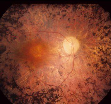Оптогенетика может помочь людям, потерявшим зрение