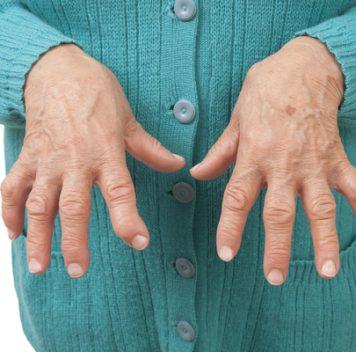 Новый препарат для лечения ревматоидного артрита демонстрирует хорошие результаты