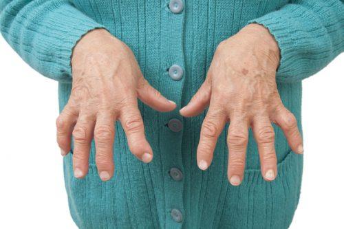 Суставы пальцев, поражённые ревматоидным артритом.