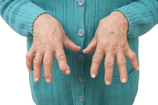 Новый препарат обещает быстрое улучшение состояния пациентов, живущих сревматоидным артритом.