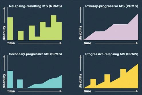 Рис. 2. Четыре клинические формы рассеянного склероза— ремиттентая рецидивирующая, первично-прогрессирующая, вторично-прогрессирующая, прогрессирующая-рецидивирующая. По горизонтали отложено время, по вертикали— инвалидизация.