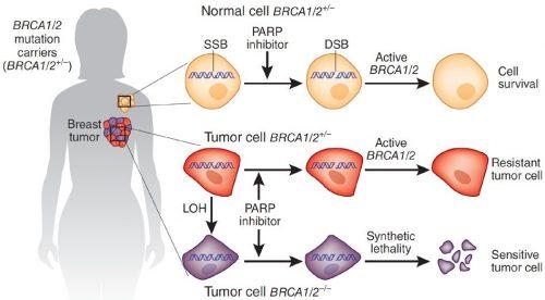 Рис. 3. Схематичное представление механизма действия ингибиторов PARP из статьи вNature. Жёлтый цвет— здоровые клетки, красный— опухоли сBRCA (без мутации), фиолетовый— опухоли смутацией BRCA. SSB— одноцепочечный разрыв, DSB— двухцепочечный разрыв. LOH— потеря обоих генов BRCA.