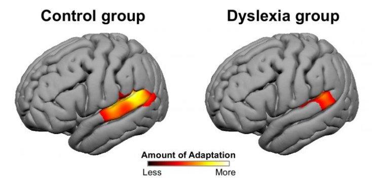 Мозг человека сдислексией (справа) также пытается адаптироваться кстимулам, но возможностей для этого, видимо, существенно меньше.