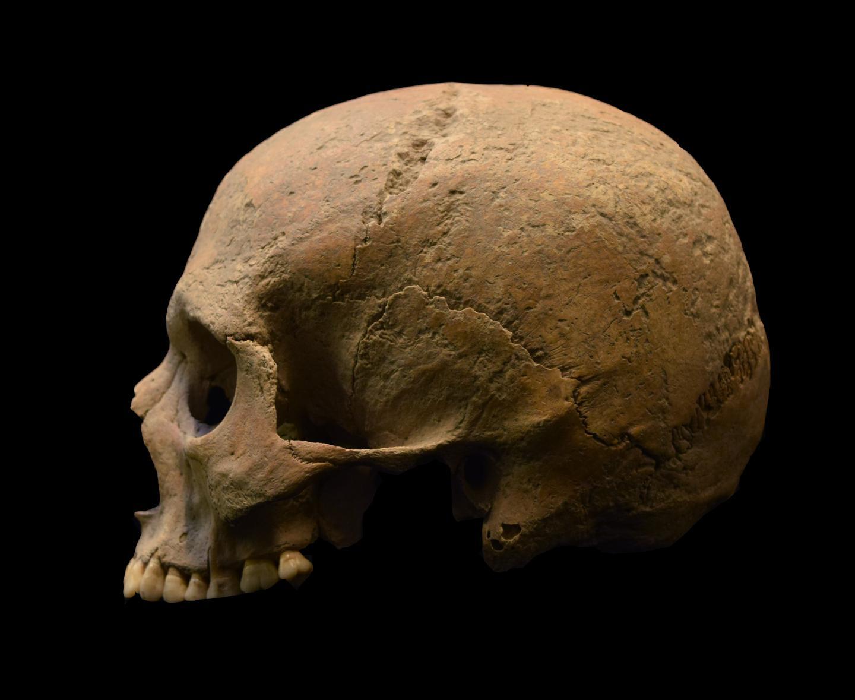 Останки индивида из Элеи, изученные впроцессе исследования. Фото: Luca Bandioli, Pigorini Museum.