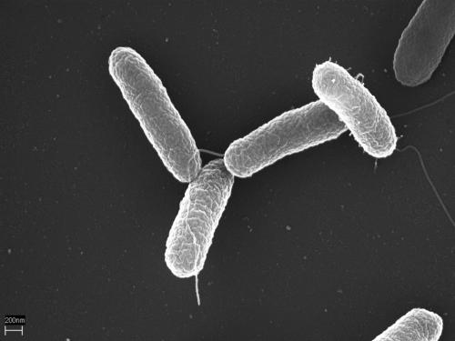 Salmonella typhimurium, возбудитель сальмонеллёза, под электронным микроскопом.