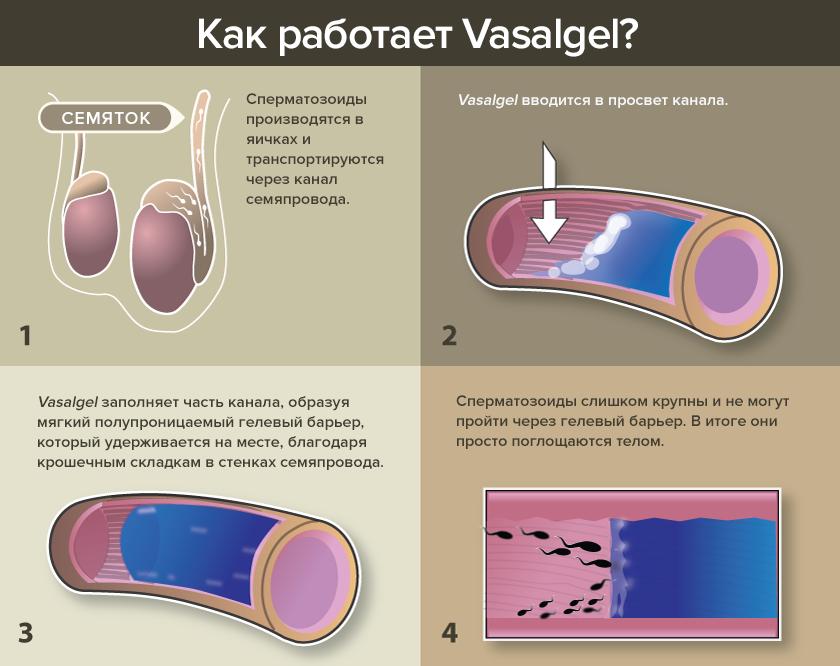 Как работает Vasalgel