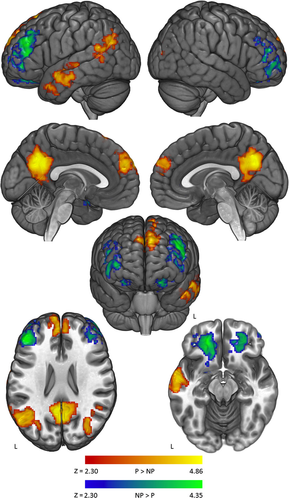 Активность вразных участках мозга при обработке контраргументов политических (выделены красным ижёлтым) инеполитических (выделены голубым изелёным) убеждений.
