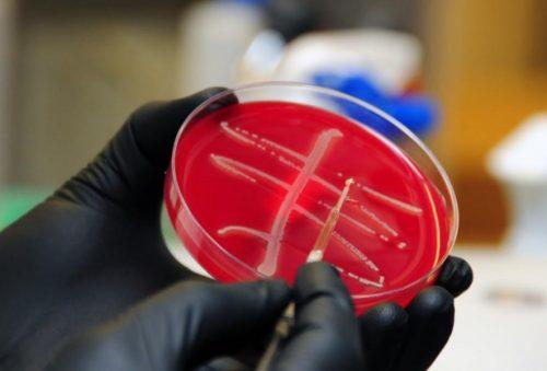 Культура бактерий E. coli сгеном MCR-1.