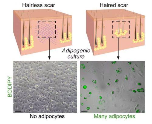 В присутствии волосяных фолликулов (справа) процесс регенерации сопровождается появлением жировых клеток иформированием здоровой кожи.