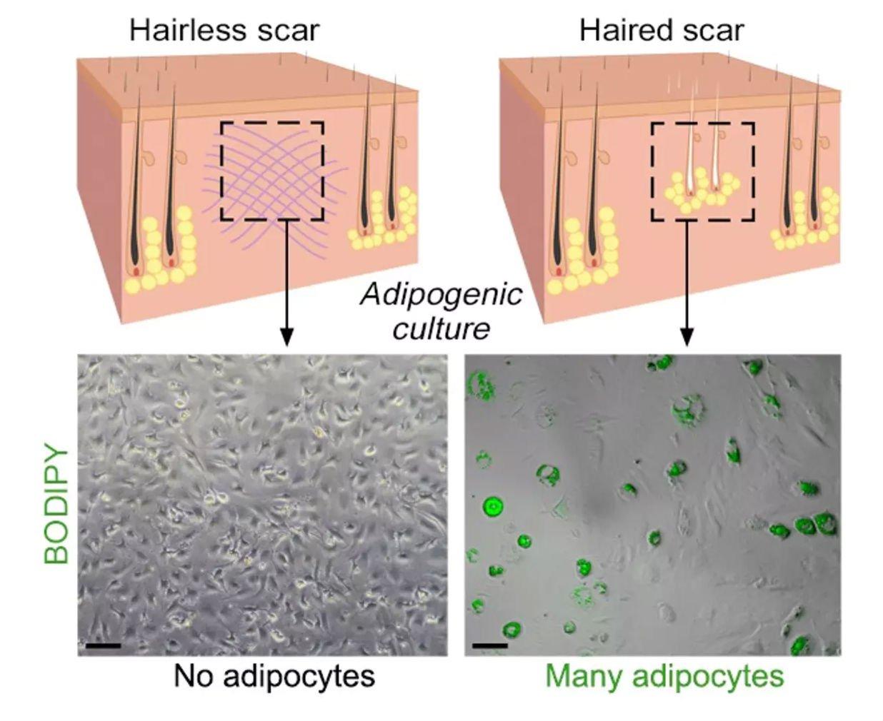 Вприсутствии волосяных фолликулов (справа) процесс регенерации сопровождается появлением жировых клеток иформированием здоровой кожи.
