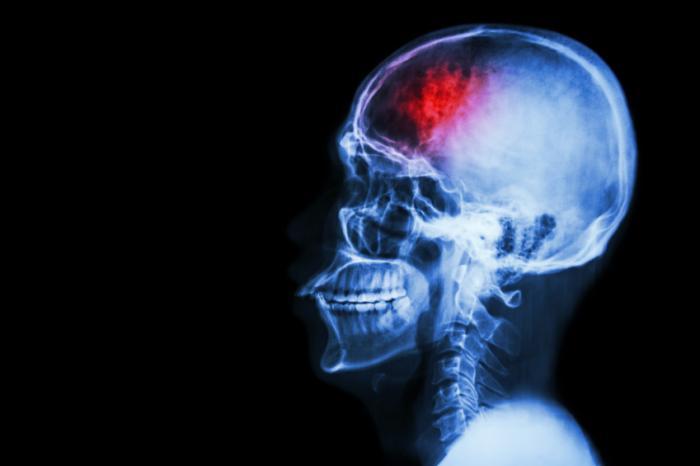 Микроинсульт способен повлиять наобласть мозга, по объёму в12 раз превосходящую ядро самого инсульта.