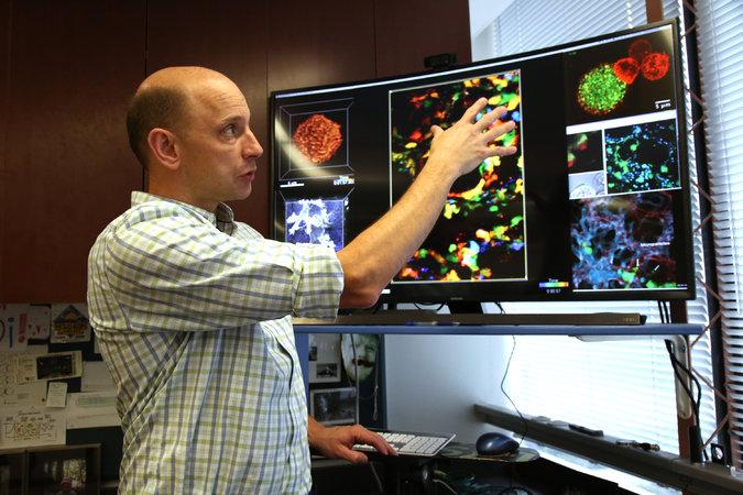 Мэттью Круммель вверхней части его лаборатории вСан-Франциско. В1990-х он работал влаборатории Университета Калифорнии, Беркли, который позднее стал одним из самых влиятельных центров развития иммунотерапии.