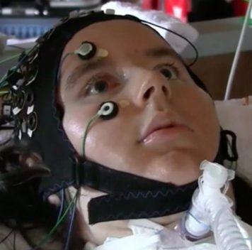 Парализованные люди смогли общаться при помощи нейроинтерфейса