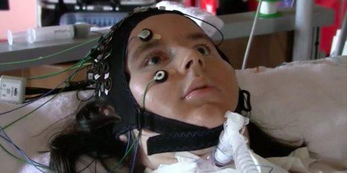 23-летняя участница исследования отвечает навопросы при помощи нейроинтефейса.